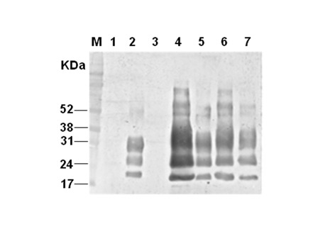 Immunoblotting detection of the persistent PrP BSE -infected cell according to serial passages. The lysates of brain homogenates (lane 1; BSE-noninfected bovine brain, lane 2; BSE-infected bovine brain-original BSE source) and MDBK cells expressing normal bovine prion protein by using infectious recombinant lentivirus (lane 3: transduced MDBK–MBDK C1–2F–passage(p) 7; lane 4: BSE-infected transduced MDBK (M2B)–p17; lane 5: M2B-p48; lane 6: M2B-p70 and lane 7: M2B-p83) were treated with proteinase K (PK) for detection of PrP BSE in transduced MDBK which was sequentially passaged after inoculating BSE-infected bovine brain homogenate. Molecular mass marker (M) in kilodaltons (kDa) is shown on the left. The result shown is representative of multiple independent experiments.