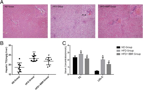 """BBR ameliorates hepatic steatosis in HFD-fed rats. (A) The livers isolated from rats fed with a normal diet (ND), high-fat diet (HFD) or HFD plus Berberine (HFD + BBR)were stained with hematoxylin and eosin. Photographs are at 200 × magnification. A large magnification is shown in the white box. Ballooning cells and Mallory bodiesare shown in black and red arrows, respectively. (B) Hepatic TG contents, and (C) serum TC and <t>LDL-c</t> levels were measured in the experimental animals as described in """" Methods """". Data are mean ± SEM. * p"""
