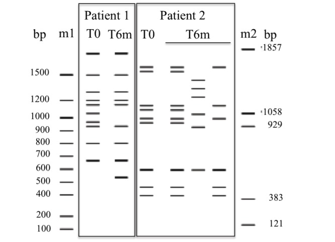 Genotypic variability of Candida albicans isolates from two different patients studied by MSP-PCR with the primer M13 at the time of DRS diagnosis (T0), and 6-months after diagnosis (T6m). Molecular size markers used were <t>DNA</t> Ladder (m1) and <t>pBR322</t> <t>DNA-BstNI</t> digest (m2).
