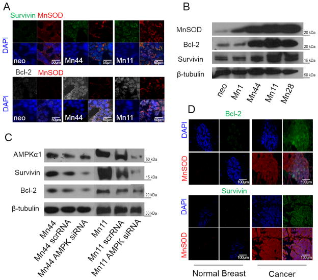 MnSOD induces the expression of survival proteins in an AMPK-dependent manner (A) Survivin and Bcl-2 protein expression in neo, Mn44 and Mn11 cells were measured by confocal microscopy. (B) same as (A) but protein expression was analyzed by Western blot in neo, Mn1, Mn44, Mn11 and Mn28 cells .(C). Silencing of AMPK by siRNA transfection with lipofectamine decreases Bcl-2 and survivin expression in Mn44 and Mn11 (results from the analysis of Mn44 and Mn11 are from different sections of the same nitrocellulose membrane). AMPK siRNA was transfected with lipofectamine 72 h prior to harvesting (D) Immunohistochemical analysis shows increased expression of anti-apoptotic proteins survivin and Bcl-2 in human breast cancer tissues in parallel with increased MnSOD expression. Representative images of at least 15 different cases (Stage III, ductal invasive carcinoma) are shown.