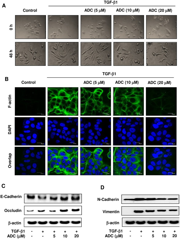 ADC blocks TGF-β1-induced EMT in breast cancer cells. MCF-7 cells were pre-treated with ADC (5–20 μM) for 2 h prior to stimulation with TGF-β1 (20 ng/mL) for 48 h. ( A ) Morphological changes especially cell scattering was examined by phase-contrast microscope. Photomicrography shown here are from one of the three independent experiments. ( B ) ADC inhibits TGF-β1-induced actin cytoskeleton reorganization in MCF-7 cells. ADC and TGF-β1 treated cells were fixed, permiabilized, and stained with FITC-phalloidin to visuvalize the F-actin cytoskeleton reorganization. The images are representative of three independent experiments. Bars, 20 μm. ( C ) Protein samples were isolated from control, ADC, and TGF-β treated cells for the detection of E-cadherin, occluding, vimentin, N-cadherin, and β-actin proteins. β-actin was used as an internal control. Western blot data presented are representative of those obtained in at least three independent experiments.