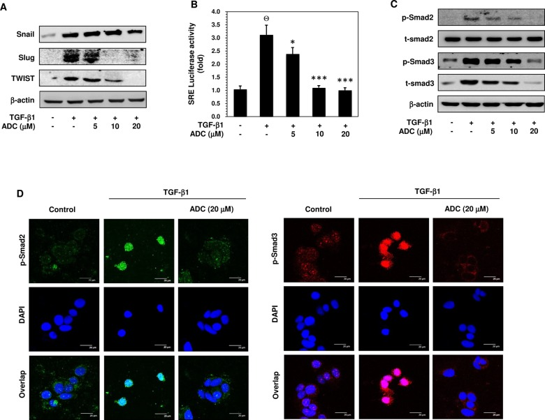 ADC inhibits TGF-β1-induced transcriptional activity of Smad2/Smad3. ( A ) MCF-7 cells were pre-treated with ADC (5–20 μM) for 2 h prior to stimulation with TGF-β1 (20 ng/mL) for 24 h. Western blot analysis was performed to examine the protein expression levels of Snail, Slug, and TWIST with specific antibodies. β-actin was used as an internal loading control. ( B ) Cells were transfected with pGL3-SBE-4-Luc reporter construct, and then pre-treated with ADC (5–20 μM) prior to stimulation with TGF-β1 for 3 h. The luciferase activity was expressed as a relative value compared to that of the untreated cells which was set to 1-fold. ( C ) Western blot was performed to measure the total and phosphorylated levels of Smad2 and Smad3 proteins. ( D ) TGF-β1-induced nuclear translocation of phosphorylated Smad2 and Smad3 were examined by immunofluorescence analysis with confocal microscope. Cells were pre-treated with ADC (20 μM) for 2 h, and then incubated with TGF-β1 for 1 h. After treatment, cells were fixed, permiabilized, and incubated with Phos-Smad2 or Phos-Smad3 primary antibodies for overnight followed by FITC and TRITC secondary antibodies, respectively for 1 h. The cellular DNA was stained with DAPI (1 μg/mL) and images were captured by confocal microscope (magnification 200). Bars, 20 μm. The data reported as mean ± SD of three independent experiments. Θ P