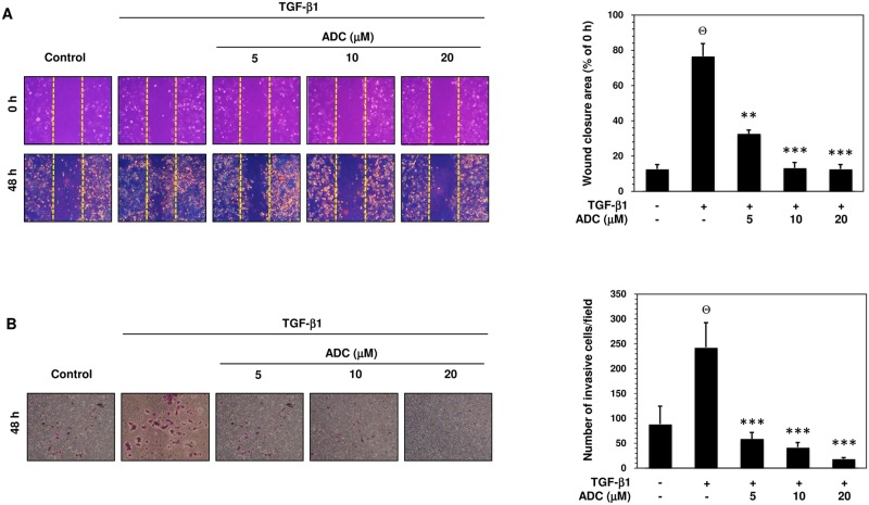 ADC inhibits TGF-β1-induced breast cancer cell migration and invasion. (A) Cell migration was determined by wound healing assay, the confluent MCF-7 monolayer was pre-treated with ADC (5–20 μM) for 2 h, cells were scratched by 200 μL pipet tips, and washed to remove the debris followed by addition of freshmedium containing 1% FBS and TGF-β1 (20 ng/mL). Cells were then incubated for 48 h. Photographs were taken at 0 h, and 48 h using inverted microscope with 10 × magnification. TGF-β1-induced cell motility was determined by measuring the area of wound closure as shown by histogram. The closure area at 48 h was compared with 0 h in the same samples. (B) For the invasion assay, the pre-treated cells were seed into the upper chamber of 24-well transwell chamber containing DMEM with 1% FBS. The lower chamber was filled with complete serum media. The cells were allowed to invade for 48 h. Invading cells were then fixed, and stained with Giemsa stain solution and counted in 5 random fields. The average invaded cells in each group was presented by histogram. The data reported as mean ± SD of three independent experiments. Θ P