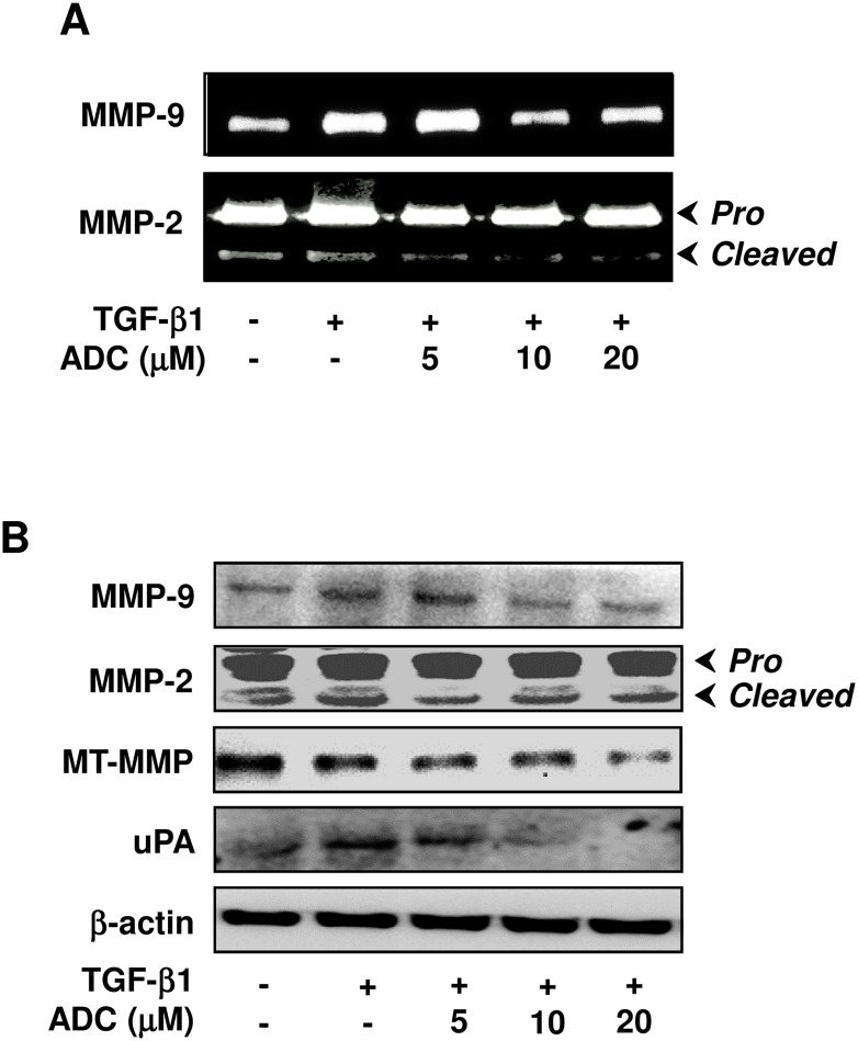 ADC down-regulates TGF-β1-induced MMPs activity in breast cancer cells. ( A ) MCF-7 cells were pre-treated with ADC (5–20 μM) for 2 h, and then stimulated with TGF-β1 (20 ng/mL) for 48 h. Gelatin zymography was performed with conditioned media collected from MCF-7 cells. ( B ) Protein expression levels of MT1-MMP, MMP-2, MMP-9, and uPA were determined by western blot analysis with specific antibodies. The house-keeping protein β-actin served as an internal loading control. Arrows denote pro- and cleaved forms of MMP-2. The data reported as mean ± SD of three independent experiments. Θ P