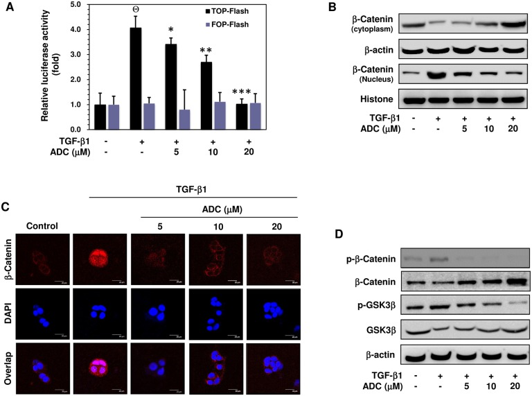 ADC suppressed TGF-β1-induced transcriptional activation of β-catenin breast cancer cells. ( A ) MCF-7 cells were co-transfected with TOP-flash or FOP-flash or pCMV-β-Gal harboring luciferase reporter construct. After transfection, cells were pre-treated with ADC (5–20 μM) for 2 h and then stimulated with TGF-β1 for 3 h. Luciferase activity was determined and normalized with β-gal activity. The histogram shows the relative luciferase activity (fold increase). ( B ) Cells were pre-treated with ADC (5–20 μM) for 2 h and then stimulated with TGF-β1 for 2 h. β-catenin expression in cytoplasam and the nucleus were determined by western blot analysis using specific cytosolic and nuclear extracts. β-actin and histone were served as an internal control for cytosolic and nuclear fractions, respectively. ( C ) The nuclear localization of β-catenin in MCF-7 cells were determined by immunofluorescence staining. MCF-7 cells were seeded in a 8-well Tek chamber and allowed to adhere for 24 h. ADC (5–20 μM) for 2 h and then stimulated with TGF-β1 for 2 h. After treatment, cells were fixed, permiabilized, and incubated with β-catenin primary antibody overnight, followed by FITC secondary antibody for 1 h. The cellular DNA was stained with DAPI (1 μg/mL) and images were captured by confocal microscope (magnification 200). ( D ) Cells were pre-incubated with ADC (5–20 μM) for 2 h, and then stimulated with TGF-β1 for 1 h. The phosphorylated and total protein expression levels of β-catenin and GSK3β were determined by western blot analysis. The data reported as mean ± SD of three independent experiments. Θ P