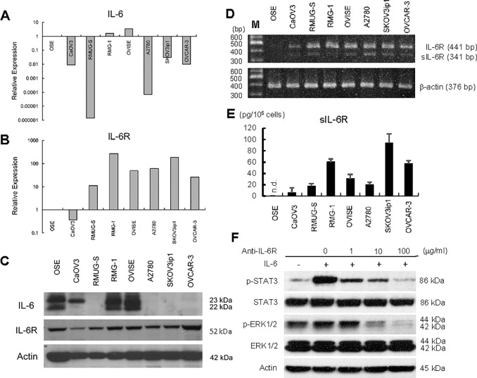 Expression of IL-6 and IL-6R in ovarian cancer cell lines. Real-time RT-PCR of IL-6 (A) and IL-6R (B). Total RNA was collected from seven different ovarian cancer cell lines using TRIzol and subjected to real-time RT-PCR. The 2 -ΔΔCT method was used to calculate the relative abundance with respect to GAPDH expression. Relative fold differences with respect to primary ovarian surface epithelium (OSE) are presented. (C) Western Blot. Cell lysates from seven ovarian cancer cells were resolved by SDS-PAGE and immunoblotted with an antibody against IL-6 and IL-6R. β-Actin was used as a loading control. (D) RT-PCR. RNA was collected and the expressions of full-length IL-6R (IL-6R) and soluble IL-6R (sIL-6R) expression in ovarian cancer cell lines were examined. PCR conditions were as described in Material and Methods. (E) ELISA assay of sIL-6R. Seven ovarian cancer cells (1 x 10 5 each) were plated onto 24-well plates and cultured with 1 ml of serum-free medium for 72 h. Conditioned media were collected and the concentration of human sIL-6R was measured by ELISA. Experiments were repeated three times. n.d.; not detected. (F) Western Blot. Exogenous treatment of IL-6 activates IL-6/IL-6R signaling in ovarian cancer cell lines. SKOV3ip1 cells were stimulated with IL-6 (100 ng/mL) for 30 minutes with or without pretreatment using ranti-IL-6R antibody (1–100 μg/ml) non-immune IgG as control. Cell lysates were collected and equal amount of cell lysates (30 μg) was resolved by 10% SDS-PAGE and immunoblotted with anti–phosphorylated STAT3 (p-STAT3) antibody and anti–phosphorylated p44/42 MAPK (p-ERK1/2) antibody. The membranes were stripped and rehybridized with antibodies detecting the total forms of the protein. Blots are representative of three experiments.