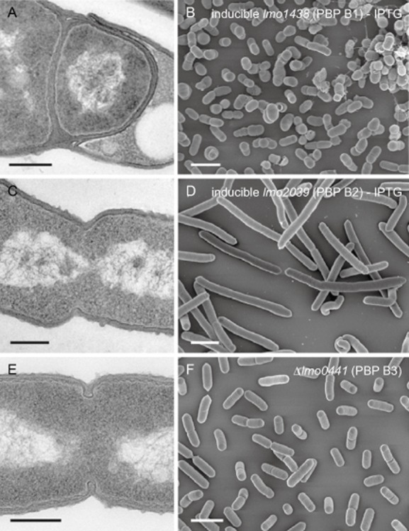Effect of PBP B1, PBP B2 and PBP B3 inactivation on cell morphology. Transmission electron microscopy of ultrathin sections (A, C, E) and scanning electron microscopy (B, D, F) of fixed whole cells of L . monocytogenes strains devoid of class B high molecular weight penicillin-binding proteins. L . monocytogenes strains LMJR27 (I lmo1438 ), LMJR18 (I lmo2039 ) and LMJR41 (Δ lmo0441 ) were grown to mid-logarithmic growth phase in BHI at 37°C and subjected to chemical fixation and subsequent electron microscopy as described in the experimental procedures section. Scale bars: left column 200 nm, right column 2 μm.