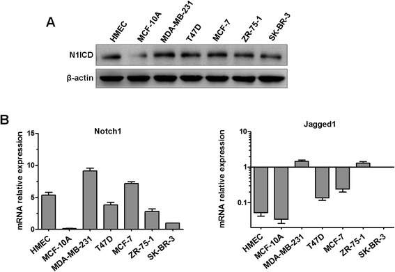 The expression of Notch1 and Jagged1 in human breast cancer cell lines. (A) The protein expression of N1ICD in a panel of breast cancer cells (MDA-MB-231, T47D, MCF-7, ZR-75-1, and SK-BR-3), HMECs, and MCF-10A cells was evaluated by western blot. Protein samples (150 μg) were separated by 10% SDS-PAGE. β-Actin was used as a loading control. (B) The mRNA expression of Notch1 and Jagged1 was estimated by real-time PCR. GAPDH was used as a normalization control for quantifying the expression of each target gene. Experiments were performed three times. Column: mean; bar: SD.