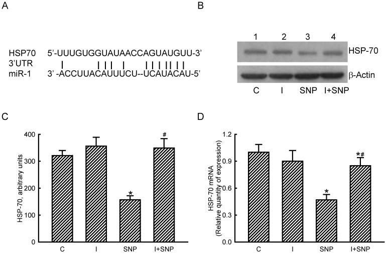 Roles of microRNA-1 (miR-1) in sodium nitroprusside (SNP)-induced inhibition of heat shock protein (HSP)-70 mRNA and protein expressions. A bioinformatic approach was conducted to predict the existence of miR-1-specific binding elements in the 3'-UTR of HSP-70 mRNA (A). MC3T3-E1 cells were treated with SNP, hsa-miR-1 (an miR-1 inhibitor), and their combination for 12 h. The Anti-miR™ miRNA Inhibitor Negative Control #1 (Control) was transfected into MC3T3-E1 cells as a negative control. Amounts of HSP-70 were immunodetected (B, top panel). β-Actin was analyzed as the internal control (bottom panel). These immunorelated protein bands were quantified and statistically analyzed (C). Levels of HSP-70 mRNA were quantified using a quantitative PCR (D). Each value represents the mean ± SEM, n = 6. * and # Values significantly ( p