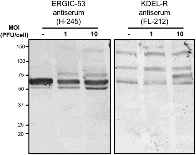 ERGIC-53 (H-245) and <t>KDEL-R</t> (FL-212) polyclonal antisera from Santa Cruz Biotechnology detect multiple protein bands. HeLa cells were infected with reovirus at a multiplicity of infection (MOI) of 1 or 10 PFU/cell. Cell lysates were prepared 24 h postinfection, resolved by SDS-PAGE, and transferred to nitrocellulose membranes. Membranes were blocked with 5% skim milk in TBS and immunoblotted using polyclonal antiserum H-245 (against ERGIC-53, left panel) or FL-212 (against KDEL-R, right panel). Anti-rabbit secondary antibody (IRDye 800CW goat anti-rabbit IgG [LI-COR]) was used for detection. Molecular mass markers (in kilodaltons) are indicated on the left.