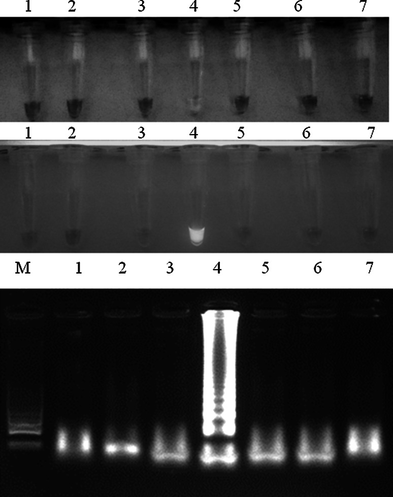 Analytical specificity of LAMP for MS detection. Visible colour change in MS-positive samples, greenish fluorescence under UV light and specific ladder-like patter after gel electrophoresis. Descriptions M molecular length marker GeneRuler™ 100 bp DNA Ladder Plus (Thermo-scientific, Waltham, Massachusetts, USA), 1 M. gallisepticum (ATCC 19610), 2 M. meleagridis (ATCC 25284), 3 M. iowae (ATCC 33552) , 4 M. synoviae strain (ATCC 25204), 5 M. anatis (ATCC 25524), 6 M. anseris (ATCC 49234) and 7 M. cloacale (ATCC 35276)