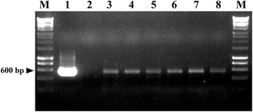 Molecular analysis of P. xanthii transformants obtained after electro-transformation with plasmid pCPXHY1eGFP. Genomic DNA from potential transformants was subjected to PCR amplification of the egfp gene using the primer pair GFP-F and GFP-R. The size of the expected PCR product is indicated on the left. Lanes are: 1, the plasmid pCPXHY1eGFP; 2, DNA from an untransformed colony; 3–8, potential hygromycin B-resistant and fluorescent transformants. M, molecular size marker 1 kb ladder.
