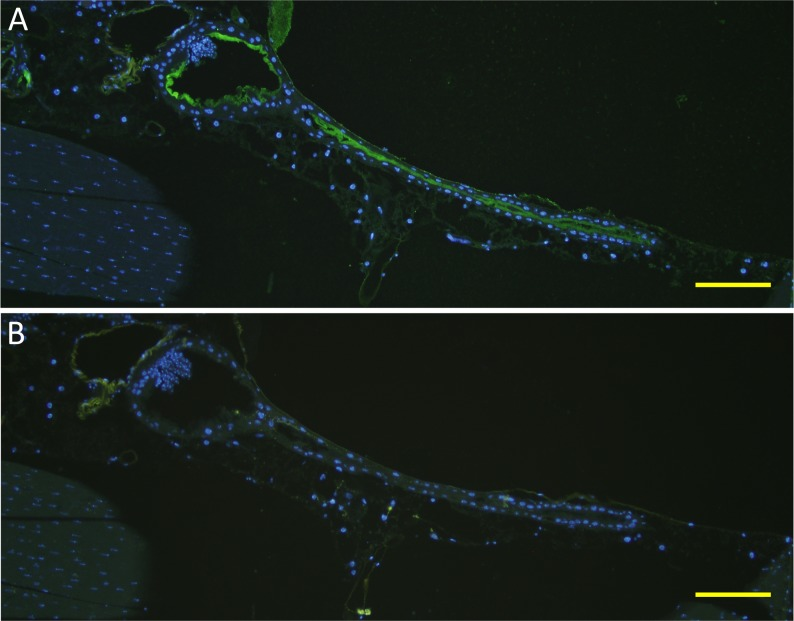 Binding of mouse FH to A. stephensi mosquito proventriculus and anterior midgut epithelial surface in indirect immunofluorescence assays. Female A. stephensi mosquitoes were fed on mouse blood using the membrane glass feeder and were cut thereafter into sections. (A) An overlay image showing binding of mouse FH from the blood meal to the epithelial surface of the proventriculus (oval shaped region) and anterior midgut (narrow tube region) of the mosquito as a green fluorescence and DAPI nuclear staining as a blue fluorescence. (B) An overlay image of a consecutive mosquito section probed with Alexa Fluor 488 Donkey anti-goat IgG only to control for cross reactivity towards mosquito and blood proteins in the absence of anti-FH. Absence of green fluorescence in (B) indicated lack of cross reactivity. Scale bars are 50 μm.