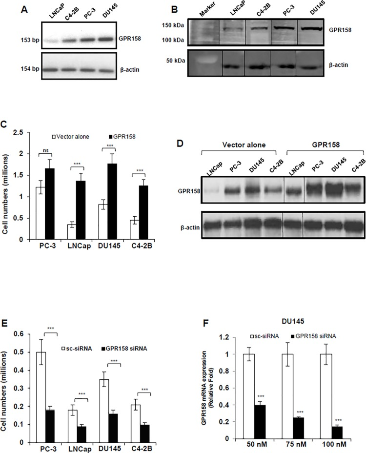 GPR158 effects on cell proliferation in PCa cell lines. (A) RT-PCR analysis of GPR158 mRNA expression in indicated PCa cell lines (B) Western blot analysis for the detection of GPR158 protein using anti-ICD GPR158 antibody in whole cell lysates of indicated PCa cell lines. The same membrane was probed for beta-actin, which served as a loading control. The vertical line indicates repositioned gel lanes from the same membrane to match the sample order of Fig. 1A . (C, D, E) All four indicated PCa cell lines were transfected at 70% confluence with either GPR158 expression plasmid or empty pcDNA3.1 (+) vector (C and D) OR either GPR158 siRNA or control scrambled siRNA (E) as indicated using Lipofectamine LTX reagent and incubated in growth medium for 3 days in a 6-well culture plates. (C and E) After 3 days, the trypsinized cells were counted using trypan blue dye in a hemocytometer chamber. (D) Western blotting for the detection of GPR158 in whole cell lysates isolated from cells transfected with indicated plasmids using anti-ICD GPR158 antibody. (F) Total RNA was isolated from DU145 cells that were transfected with the indicated concentration of either GPR158 siRNA or control scrambled siRNA for analyzing the levels of GPR158 mRNA by qRT-PCR. GAPDH was internal reference control. (C, E, F) The data shows mean ± SE of 3 independent experiments, each performed in duplicate. ***p