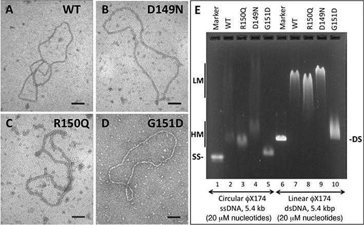 Properties of hRAD51 variant nucleoprotein filaments. ( A – D ) Electron micrographs of representative nucleoprotein filaments formed by variant and WT RAD51 proteins on φX174 circular ssDNA in the presence of ATP. All images are 100 000X magnification. The black scale bar in each panel represents a distance of 100 nm. ( E ) Differential electrophoretic mobilities of complexes formed by variant and WT RAD51 proteins on φX174 circular ssDNA and linear dsDNA in the presence of ATP. Lanes 1 and 6 contain markers for naked ssDNA and dsDNA, respectively. Lanes 2–5 contain WT, R150Q, D149N and G151D complexes with ssDNA, respectively. Lanes 7–10 contain WT, R150Q, D149N and G151D complexes with dsDNA, respectively. 'LM' and 'HM' denote low- and high-mobility protein–ssDNA complexes, respectively.