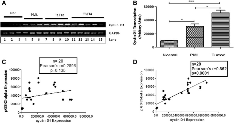 The correlation of pSer 21 GSK3α /pSer 9 GSK3β expression with cyclin D1 transcription in various OSCC samples. (A) RT-PCR showing cyclin D1 mRNA expression (201 bp PCR product) in different normals (lane 1–3), PMLs (lane 4–6) and oral cancer samples of various stages (T1-T2 samples lane 7–10; T3-T4 samples lane 11–15). GAPDH expression (410 bp PCR product) was used as a control in this experiment. (B) A histogram showing the level of expression of cyclin D1 mRNA in various groups (N-Normal, PML, T-Tumor) of samples as indicated. No significant correlation (C) of cyclin D1 mRNA expression and pSer 21 GSK3α protein expression was observed, and a positive correlation (D) between cyclin D1 mRNA expression and the expression of pSer 9 GSK3β was observed.