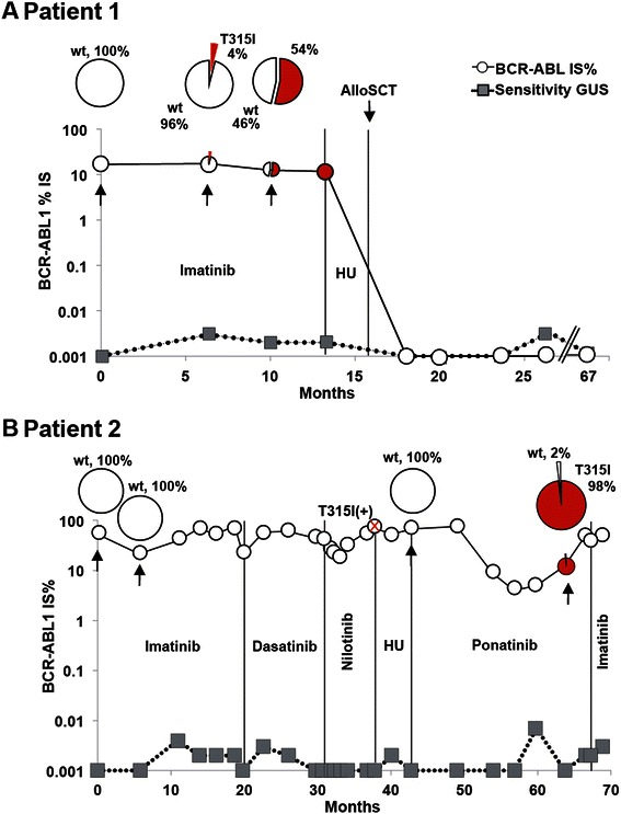 Overview of treatments and PacBio results for patients with single mutations. A) Results for patient 1. The BCR-ABL1 IS% values measured by routine quantitative RT-PCR are shown in open circles. The sensitivity of this assay was measured for the BGUS reference gene and depicted by gray squares. The samples that were analyzed by PacBio sequencing are indicated by black arrows and their mutation composition showed in the circle plot diagrams above each time point. Vertical lines indicate the treatment periods. HU (Hydroxyurea). B) Results for patient 2. The T315I mutation was detected after nilotinib treatment, as indicated by the red cross. The mutation was detected at this time point using our allele specific quantitative PCR used in routine analysis.