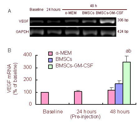 BMSCs-GM-CSF increased VEGF mRNA levels at 48 hours after MCAO. (a) VEGF mRNA was measured by reverse transcription-PCR before MCAO (baseline), as well as at 24 hours after MCAO (pre-injection) and 48 hours after MCAO. (b) Bar graph shows VEGF mRNA levels at different time points. VEGF mRNA expression is the percentage of VEGF mRNA to GAPDH mRNA/baseline. Baseline value was standardized to 1. Data are expressed as mean ± SD. a P