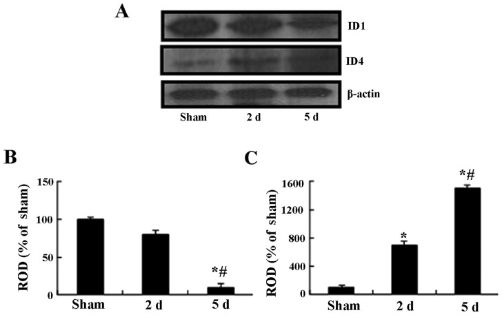 (A) Western blot analysis of ID1 and ID4 in the Cornu Ammonis region CA1 of the sham-operated and the ischemia groups, using β-actin as the loading control. The intensity of the immunoblot bands corresponding to (B) ID1 and (C) ID4 was quantified and expressed as relative optical density (ROD)% values relative to the sham-operated group. * P