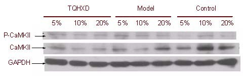 Effect of serum with Tongqiaohuoxue decoction (TQHXD) on the expression of calmodulin-dependent protein kinase II (CaMKII) and phosphorylated CaMKII (P-CaMKII) in PC12 cells (western blotting). Glyceraldehyde 3-phosphate dehydrogenase (GAPDH) was used as the loading control. A high gray value ( Table 1 ) represents low protein expression.