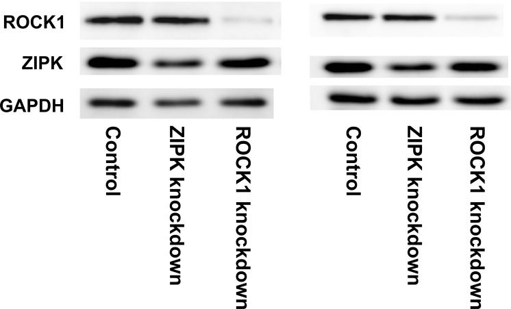 Knockdown of ROCK1 and ZIPK at the protein level in CASMC. CASMC were transfected with siRNAs to ROCK1 or ZIPK or with negative control siRNAs. Cells were lysed 48 h later for western blotting with anti-ROCK1 and anti-ZIPK. Loading levels were normalized using anti-GAPDH. Representative results are shown for two of a total of 10 independent experiments. Quantitative data are presented in Table 2 .
