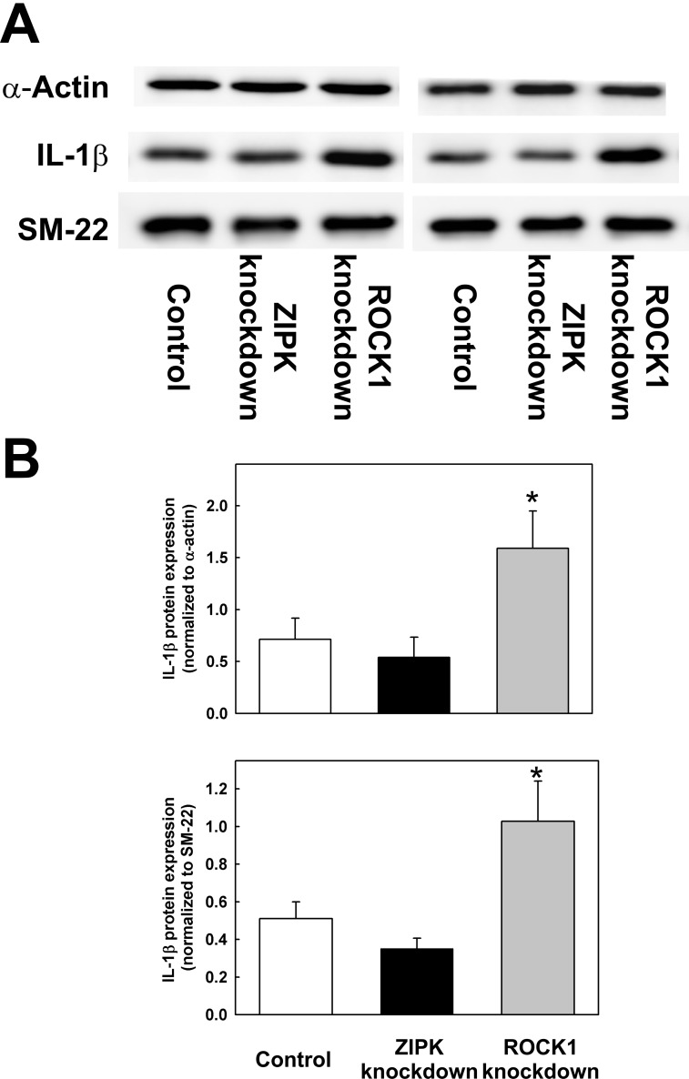 Effects of ROCK1 and ZIPK knockdown on IL-1β protein expression. IL-1β protein expression in control cells and cells transfected with ZIPK or ROCK1 siRNA was examined by western blotting. (A) Two representative western blots showing the levels of IL-1β in control UASMC and in UASMC 48 h after transfection with siRNAs to ZIPK or ROCK1. Two loading controls were used: α-actin and SM-22. (B) Quantification of IL-1β expression levels relative to α-actin (upper panel) and SM-22 (lower panel) in control, ZIPK- and ROCK1-knockdown UASMC. Values represent means ± SEM ( n = 13 for α-actin and n = 9 for SM-22). *significantly different from control ( p