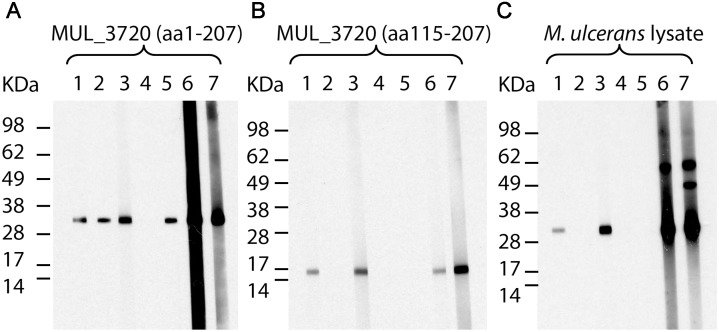 Reactivity of MUL_3720-specific antibodies. Mouse mAbs JD3.2 (1), JD3.3 (2), JD3.4 (3), JD3.6 (4) and JD3.7 (5) and rabbit polyclonal IgG SZ3398 (6) and SZ3403 (7) were tested for their reactivity with MUL_3720 (aa 1–207) ( A ), truncated MUL_3720 (aa 115–207) ( B ) and the endogenous MUL_3720 in a total protein lysate of M. ulcerans strain NM20/02 ( C ) by Western Blot analysis.
