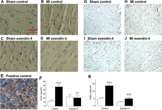 Effect of exendin-4 on myocardial inflammation after MI. Representative LV sections stained for a – e CD45, with positive spleen control, and g – j <t>F4/80,</t> to assess leukocyte and macrophage infiltration, respectively. f , k Quantification data ( n = 5–6). White columns sham; black columns MI; mean ± SEM. *** P
