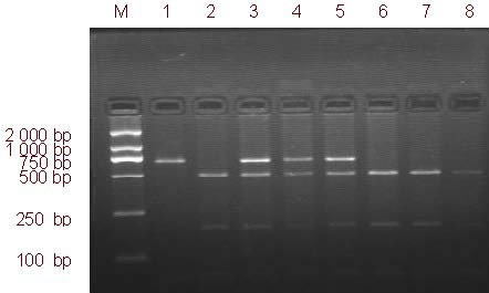 Hae III enzyme digestion identification of β-fibrinogen -455G/A (polymerase chain reaction and restriction fragment length polymorphism). M: DL2000 marker; 1: AA (669 bp); 2, 6, 7, 8: GG (488 bp, 181 bp); 3–5: GA (455 bp).
