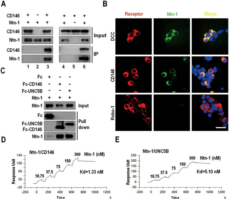Netrin-1 binds to CD146. (A) Co-immunoprecipitation assays. Netrin-1- and CD146-expressing plasmids were co-transfected into HEK293 cells prior to preparation of cell lysates. Lanes 1 and 4: precipitated by control mIgG. Lanes 2 and 3: anti-CD146 mAb AA1. Lanes 5 and 6: anti-netrin-1 mAb. (B) HEK293 cells were transfected with plasmids encoding DCC, CD146 or Robo-1 and incubated with netrin-1-GFP conditional medium. Binding of netrin-1-GFP to the cell was detected by its GFP fluorescence. Scale bar, 50 μm. (C) Direct interaction between purified netrin-1 and CD146 proteins in vitro . Fc, Fc-CD146 or Fc-UNC5B (200 ng/ml) bound protein G beads was incubated with netrin-1 protein (200 ng/ml). The bound proteins were analyzed by western blotting. (D , E) Determination of netrin-CD146 binding affinity by SPR. Purified netrin-1 protein was applied at different concentrations to the CM5 chips containing Fc-CD146 (D) or Fc-UNC5B (E) . Data represent 3 independent experiments.