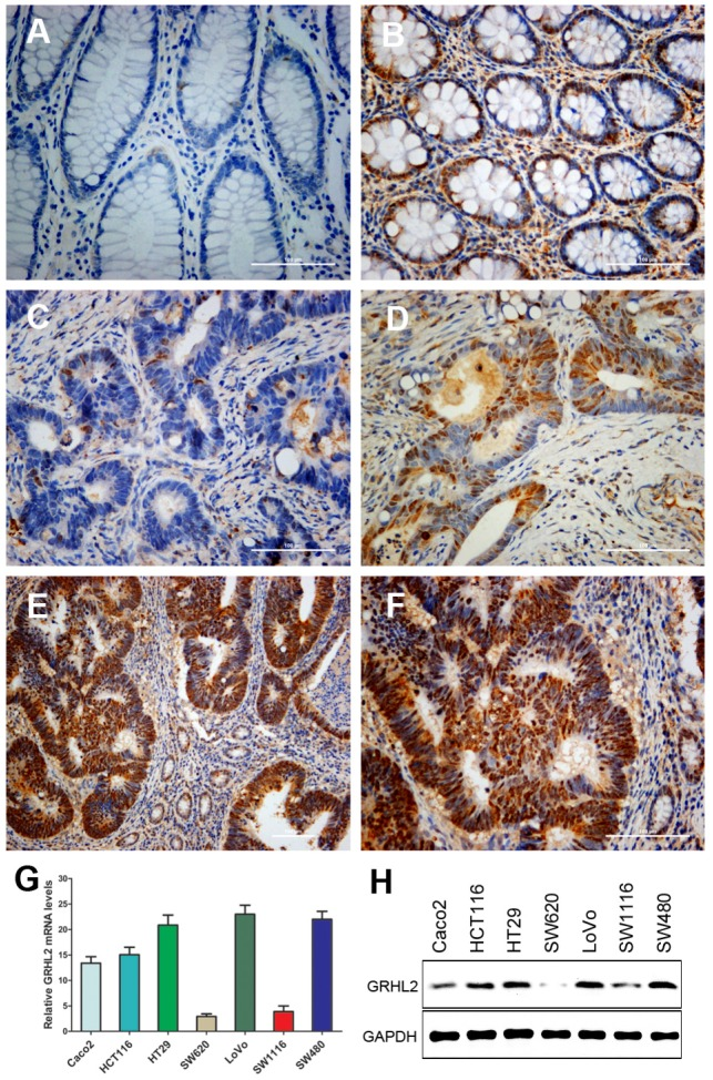 GRHL2 expression was increased in colorectal cancer (CRC) tissues and varied in CRC cell lines. (A) GRHL2-negative normal mucosa epithelium adjacent to carcinoma. (B) Nuclear staining of GRHL2 in normal epithelium adjacent to cancer. (C) GRHL2-negative cancer tissue. (D) Moderate positive nuclear stain for GRHL2 in cancer tissue. (E-F) Strong nuclear staining for GRHL2 in CRC tissue. The scale bar indicates 100 um. Original Magnification: × 200 (A-D, F), × 100 (E). (G) The expression of GRHL2 gene transcripts in a panel of human CRC cell lines were detected by qRT-PCR. The relative amount of mRNA was normalized using GAPDH as endogenous control. (H) GRHL2 protein levels were detected by western blot, with GAPDH as control.