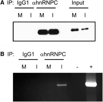 Association of hnRNP C1/C2 proteins with dengue viral RNA. Mock-infected (M) and DENV-infected (I) cells were subjected to immunoprecipitation using anti-hnRNPC1/C2 (αhnRNP C) monoclonal antibody and their isotype-matched control antibody (IgG1). (A) Immunoprecipitated proteins were analyzed by immunoblotting using hnRNP C1/C2-specific antibody. Mock and DENV-infected cell lysates prior to immunoprecipitation served as controls (input). (B) RNA was extracted from the immunoprecipitated samples and used as a template for RT-PCR with a primer pair specific for DENV NS1 region. PCRs performed in parallel in the absence of cDNA and in the presence of pcDNAhygro containing DENV NS1 gene were included as negative (−) and positive (+) controls, respectively. Results are representative of three independent experiments with similar outcome.