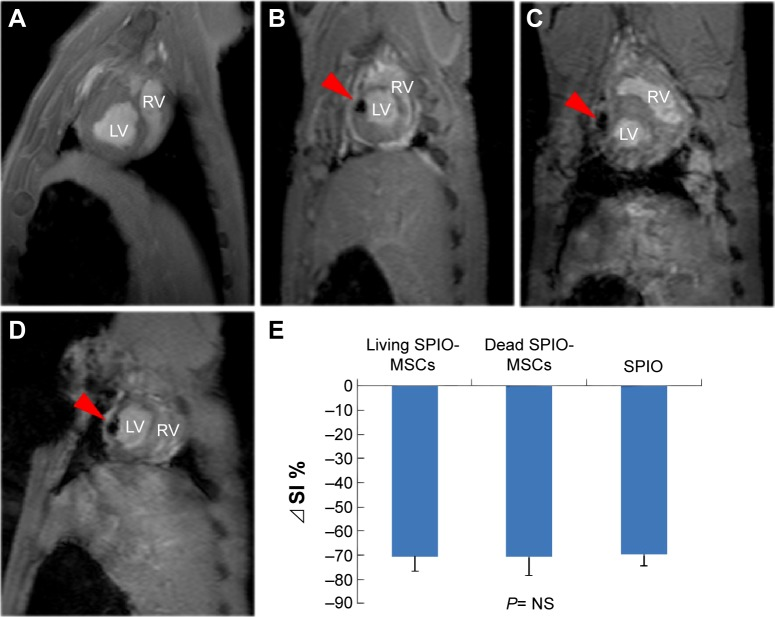 CMR imaging. Notes: ( A ) Representative in vivo CMR imaging of injected 5×10 5 unlabeled MSCs, ( B ) living SPIO-MSCs, ( C ) dead SPIO-MSCs, and ( D ) SPIO (0.6 μL Resovist) in swine heart. Red arrows in figures B – D indicate the signal void corresponding to the injection sites. ( E ) Quantitative analysis of signal intensity. ⊿SI=[(SI−SIunlabeled MSCs)/SIunlabeled MSCs]×100%. Abbreviations: CMR, cardiac magnetic resonance; LV, left ventricle; MSCs, mesenchymal stem cells; NS, not significant; RV, right ventricle; SPIO, superparamagnetic iron oxide; SPIO-MSCs, mesenchymal stem cells incubated with superparamagnetic iron oxide; SI, signal intensity.