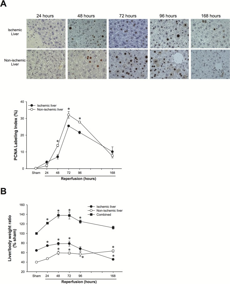 Hepatocyte proliferation and liver regeneration in ischemic and non-ischemic liver lobes after I/R injury. (A) Hepatocyte proliferation was determined by immunohistochemical staining for proliferating cell nuclear antigen (PCNA) and quantitative analysis of PCNA labeling. Data are mean ± SEM with n = 3–5 per group. * P