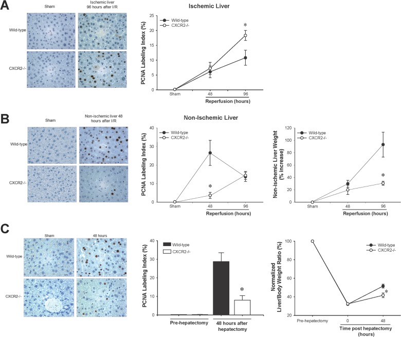Effect of CXCR2 on hepatocyte proliferation and liver regeneration after I/R injury (A) and partial hepatectomy (B) was determined by <t>immunohistochemical</t> staining for proliferating cell nuclear antigen <t>(PCNA)</t> and quantitative analysis of PCNA labeling. (A) Hepatocyte proliferation in post-ischemic liver (upper panel) after I/R injury showed a significant increase in CXCR2−/− mice. Data are mean ± SEM with n = 3–14 per group. * P