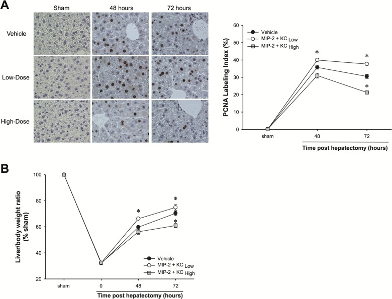 Effects of exogenous MIP-2 and KC treatment on hepatocyte proliferation and liver regeneration after partial hepatectomy. Wild-type mice were injected intravenously with high doses or low doses of MIP-2 and KC, starting 24 hours after hepatectomy and continued daily. An identical volume of sterile phosphate-buffered saline (PBS) was used as a vehicle control. (A) Hepatocyte proliferation was determined by immunohistochemical staining for proliferating cell nuclear antigen (PCNA) and quantitative analysis of PCNA labeling. Data are mean ± SEM with n = 4–8 per group. * P