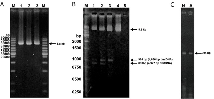 Detection of large-scale deletions of <t>mtDNA</t> from human washed sperm by long-range <t>PCR</t> method. A: The 5860 bp band represents the PCR product of normal mtDNA with primer pair LF3-HR4. Lane M is the 1-kb DNA size. B: Using the primer sets LF3-HR4, the 5860 bp band was amplified from the wild-type mtDNA, the 994 bp and 883 bands were amplified from the 4866 bp and 4977 bp-deleted mtDNA, respectively. Spermatozoa in lanes 1-4 had the motility scores of 5.0, 20.0, 30.0, 40.0% respectively. Lane 5 is the blank, in which the sperm DNA was omitted from the reaction mixture. Lane M is the1-kb DNA size marker. C. The arrow indicates the band of 994 bp produced with primer pair LF3-HR4. Using a short extension time of 1 minute at 72˚C, the longer DNA product from wild-type mtDNA could not be produced and only mtDNA with 4866 bp-deletion was amplified. Lanes N and A normal and abnormal groups, respectively.