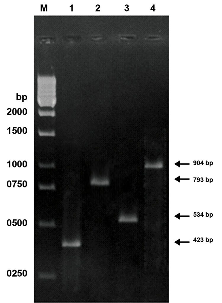Detection of the 4866 and 4977 bp-deleted mtDNA by the primer shift PCR method in human spermatozoa. Lanes 1-2 represent the PCR products of 423 and 793 bp amplified from the 4977 bp-deleted mtDNA with primer pair LF4-HR3 and LF4-HR4, respectively. Lanes 3-4 represent the PCR products of 534 and 904 bp amplified from the 4866 bpdeleted mtDNA with primer pairs LF4-HR3 and LF4-HR4 respectively. Lane M indicates the 1-kb DNA size marker.