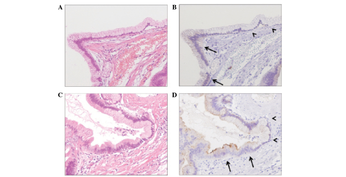 Mesothelin expression was detected in IPMN tissue, but not in the normal pancreatic tissue, and was limited to adenoma cells (arrows) Notably, the benign ductal epithelial cells of the intraductal papillary mucinous adenoma patients were negative for mesothelin expression (arrowheads). (A) Stain, hematoxylin and eosin (HE). (B) Tissue sample in (A) stained for mesothelin expression. (C) Stain, HE. (D) Tissue sample in (C) stained for mesothelin expression. Magnification, ×200.