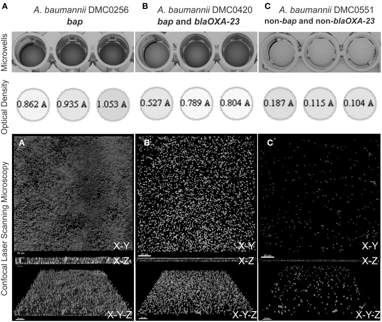 Biofilm quantification process of four A. baumannii isolates using crystal violet staining, measurement from a 96-well plate reader, and visualization using confocal laser scanning microscopy . (A) Shows DMC0256, a representative sample bap alone isolate. (B) Shows DMC0420 with both bla OXA-23 and bap . (C) Shows DMC0551, a representative non- bap isolate. A top view, side view, and angled view of the biofilm from each isolate is shown to illustrate biomass, thickness, and confluence differences between the isolates.