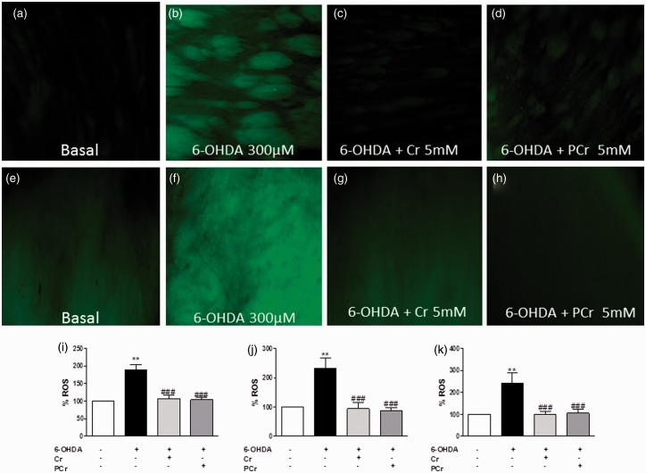 Creatine and PCr inhibit oxidative stress induced by 6-OHDA in rat striatal slices. ROS generation was estimated with the fluorescent probe, 2′,7′-dichlorofluorescein diacetate (H 2 DCFDA). DCF fluorescence images in the putamen (a–d) and globus pallidus (e–h) under the different experimental conditions indicated in each panel taken at 100×. Quantification of DCF fluorescence on rat striatal slices homogenates was measured in a Tecan microplate reader and expressed as nmol of oxidized DCF per mg protein and normalized to control 100%. The quantification of DCF fluorescence in the putamen (j) and globus pallidus (k) was measured in an epifluorescence <t>NIKON</t> eclipse <t>T2000-U</t> microscope. Quantification of the mean fluorescence obtained under each experimental condition in putamen and globus pallidus is normalized respect to control (100%). Each column represents the mean + SEM of six to nine experiments. ** p