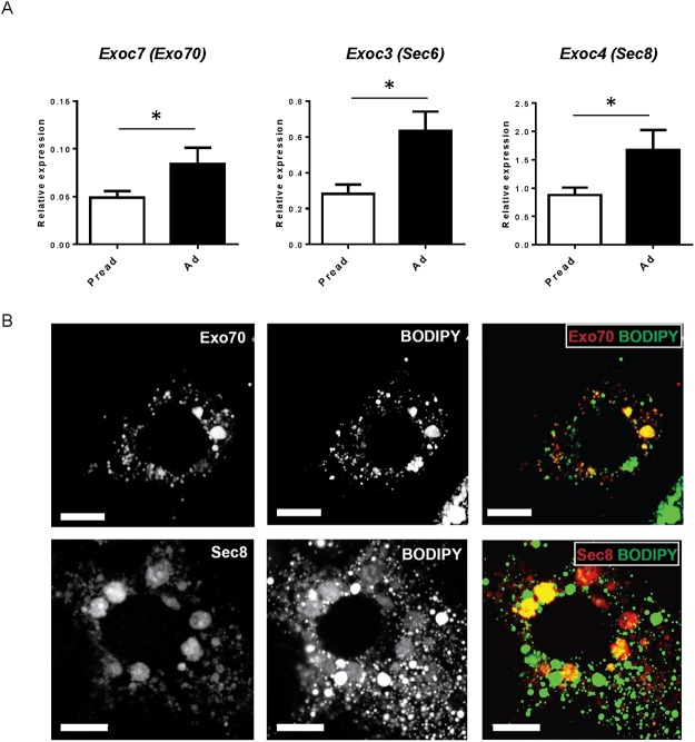 The expression and localization of the exocyst complex in adipocytes. (A) The mRNA expression of Exo70, Sec6, and Sec8 before and after <t>3T3-L1</t> adipocyte differentiation. Pread: 3T1-L1 preadipocytes, Ad: 3T3-L1 adipocytes. (B) Upper, intracellular localization of mCherry-Exo70 (red) and lipid droplets stained with BODIPY 493/503 (green); lower, HA-Sec8 (red) and lipid droplets (green). Scale = 10 μm.