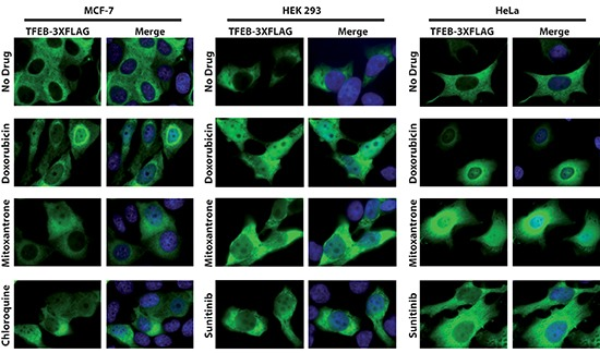 Translocation of TFEB-FLAG from the cytoplasm to the nucleus after exposure of malignant and non-malignant human cells to doxorubicin, mitoxantrone and sunitinib Stably transfected MCF-7 TFEB-3XFLAG cells were exposed to 0.5 μM doxorubicin, 0.5 μM mitoxantrone or 100 μM chloroquine for 24 hr. In an independent set of experiments, 24 hr after transient transfection of HEK293 and HeLa cells with FLAG-tagged TFEB using electroporation, The cells were exposed to 0.5 μM doxorubicin, mitoxantrone, or sunitinib for 24 hr. Cells were then fixed, stained with the DNA dye DAPI (blue fluorescence), incubated with an anti-FLAG antibody (green fluorescence) and analyzed by a fluorescence microscope. The first row represents the drug-free control cells.