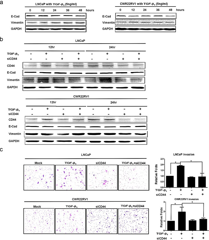 TGFβ1 altered EMT with enhanced PCa invasion via modulating CD44 (a) After 5ng/ml TGFβ 1 treatment, the decrease expression of E-Cadherin and the increase expression of vimentin were detected in LNCaP and CWR22rv1 cells in a time dependent manner by Western blot. (b) EMT transition induced by TGFβ 1 could be blocked by CD44 siRNA in LNCaP and CWR22rv1 cells. LNCaP and CWR22rv1 cells were treated with 5ng/ml TGFβ 1 with or without CD44 siRNA for 12hrs and 24hrs. The expressions of CD44, E-Cadherin and Vimentin of different treatments were detected by Western blot assay. (c) Invasion ability of LNCaP and CWR22rv1 cells treated with TGFβ 1 (5ng/ml), CD44 siRNA and both treatments were analyzed in Transwell Chamber assay. Quantitation was shown on the right. Significance was defined as p