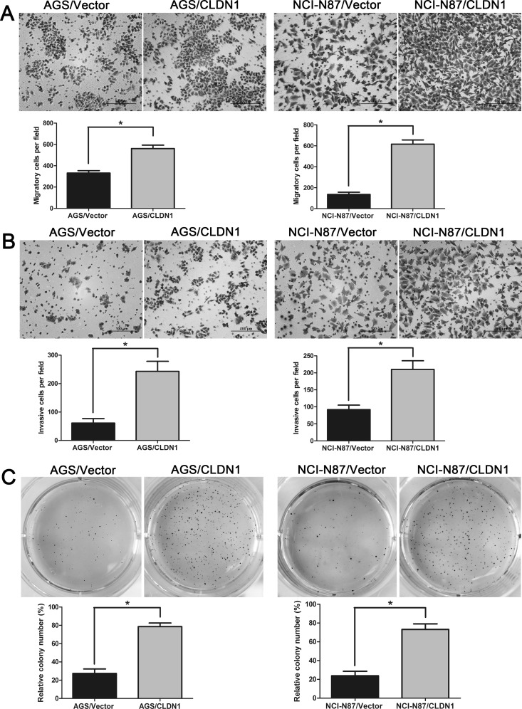Overexpression of CLDN1 in gastric cancer cells AGS and NCI-N87 enhances cell migration and invasion in vitro , and facilitates cell growth in soft agar 3D (A) Representative photographs of migratory cells on the membrane in cell migration assay (original magnifications: ×200). Average migratory cell number of CLDN1-overexpressed cells were significantly higher than that of control cells (*, P