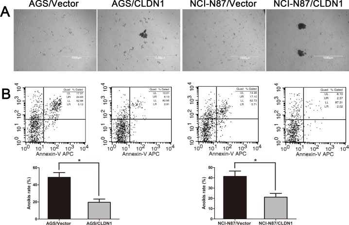 <t>Overexpression</t> of <t>CLDN1</t> enhanced cell aggregation and anoikis resistance (A) Representative photographs of cell aggregation after 6 hrs of suspension (original magnifications: ×40). (B) Representative histograms depicting apoptosis and relative apoptotic rate of CLDN1-overexpressed cells and their respective controls after 3h of suspension determined by FCM (*, P