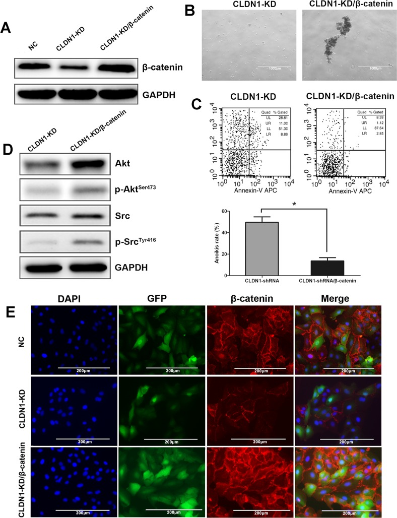 Overexpression of β-catenin in CLDN1-KD cell of HS-746T restored cell aggregation, anoikis resistance and survival signals of Akt and Src activation (A) WB analysis, the expression of β-catenin decreased in CLDN1-KD cells and re-increased in HS-746T/CLDN1-KD/β-catenin cells. (B) Representative photographs of cell aggregation after 6 hrs of suspension (original magnifications: ×40). (C) FCM analysis of cell apoptosis after 3h of suspension. Relative apoptotic rate of HS-746T/CLDN1-KD/β-catenin significantly decreased after 3h of suspension as compared to that of HS-746T/CLDN1-KD (*, P