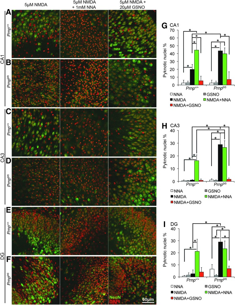 NOS inhibition increases neuronal cell death in Prnp +/+ OHC but not in Prnp 0/0 , while NO addition enhances neuron survival upon NMDA exposure. Images from Prnp +/+ and Prnp 0/0 OHC areas are reported in rows: (A) Prnp +/+ CA1; (B) Prnp 0/0 CA1; (C) Prnp +/+ CA3; (D) Prnp 0/0 CA3; (E) Prnp +/+ DG; (F) Prnp 0/0 DG. The different treatments are reported in columns: 5 μ M NMDA for 3 h, left column ; 5 μ M NMDA+1 m M NNA for 3 h, central column ; 5 μ M NMDA+20 μ M GSNO for 3 h, right column . NeuN staining is displayed in green and DAPI in red . Confocal microscope fluorescence images were acquired using a 40×/1.30 NA oil objective. Graphs show the comparison of the neuronal pyknotic nuclei percentage, calculated over the total nuclei number, between Prnp +/+ and Prnp 0/0 OHC in CA1 (G) , CA3 (H) , and DG (I) ; all error bars indicate SD; sample size n =4 OHC, 5 slices per treatment in each culture; * p