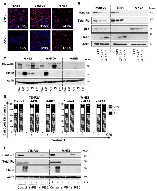 Rb-Deficient HMECs are Incapable of G0 Arrest and Fail to Upregulate Elafin (A) 76NE6, 76NF2V, and 76NE7 immortalized HMECs were cultured with GFs (+GFs) or without GFs (−GFs) for 48 hours and examined by immunofluorescence staining for Ki67 expression. Scale bars are 50 μm. (B) Western blot of pRb S807/811, total Rb, p53, and elafin in HMECs cultured with GFs (+GFs) for 24 hours or without GFs (−GFs) for 24 and 48 hours. Actin, loading control. (C) HMECS were cultured in growth factor containing medium (asynchronous; Asy), in the absence of growth factors (arrested in G0), with 10 μM lovastatin (arrested in G1), with 10 μM aphidicolin (arrested in S phase), and with 5 μM nocodazole (arrested in M phase). Western blot of pRb S807/811, total Rb, and elafin expression. Actin, loading control. (D,E) 76NF2V and 76NE6 cells stably infected with pGIPZ lentiviral vectors containing control and two unique, RB-specific shRNAs were cultured with GFs (+GFs) or without GFs (−GFs) for 24 hours. (D) Cell cycle distribution was determined DNA content analysis. (C) Western blot of phosphorylated Rb (S807/811) and elafin in 76NE6, 76NF2V, AND 76NE7