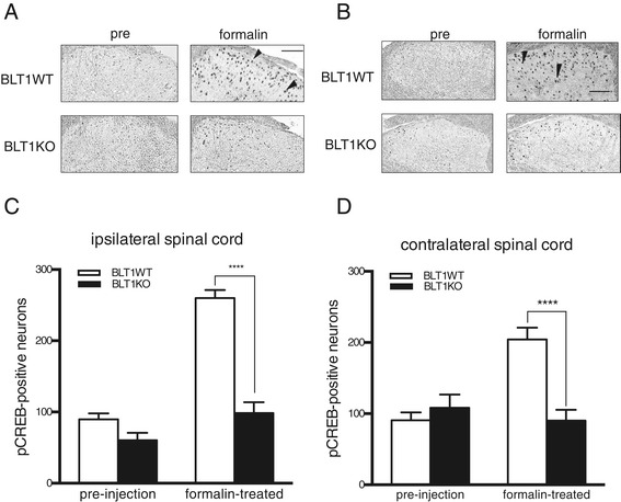The expression of phosphorylated CREB (pCREB) in the dorsal horn is attenuated in BLT1KO mice. Representative diaminobenzidine-stained images showing pCREB-positive neurons in sections of the ipsilateral (A) and contralateral (B) dorsal horn of the lumbar spinal cord before or 20 min after a peripheral formalin injection (magnification, 100×). Arrowheads indicate pCREB-positive neurons. The number of pCREB-positive neurons in the ipsilateral (C) and contralateral (D) dorsal horn of the lumbar spinal cord prior to or 20 min after formalin injections. (**** p